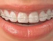 عوامل مؤثر در نامرتب بودن دندان ها