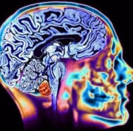 هانتینگتون نوعی بیماری تأثیرگذار بر روی رفتار افراد