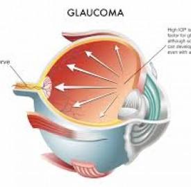 گلوکوم یا آب سیاه یک بیماری چشمی با علل ناشناخته !