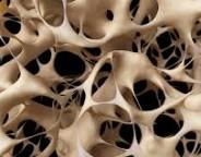 آیا راههای مقابله با پوکی استخوان را میشناسید و به آن عمل میکنید ؟