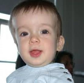 کرانیوسینوستوز اختلالی ژنتیکی که در کودکان ایجاد می شود