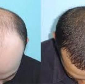 کاشت مو به روش دیجیتال توسط محققان ایرانی
