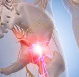 سیاتیک و نکات مهمی درخصوص این نوع درد مزمن