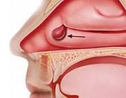 اهمیت درمان پولیپ بینی و توصیه هایی در خصوص آن
