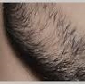 کچلی ریش و روش های درمان این بیماری قارچی