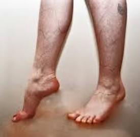 درمان واریس پا به کمک روش های خانگی و طبیعی