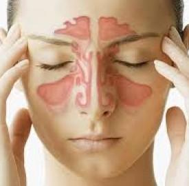 سینوزیت پیشانی از عوامل ایجاد تا روش های درمان