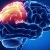 بیماری آنسفالیت و اطلاعاتی راجع به این بیماری مغزی