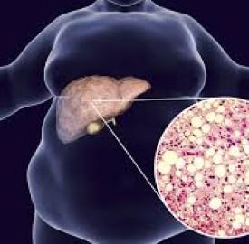 کبد چرب و راهکاری برای کاهش علایم این بیماری ؟