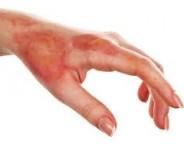 سوختگی پوست را با درمان خانگی برطرف کنید
