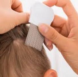 شپش سر و چگونگی درمان این عارضه پوستی ؟