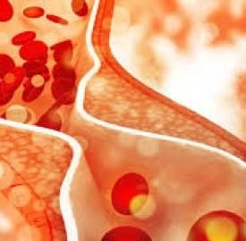 چربی خون و خطراتی که برای سلامت افراد به همراه دارد