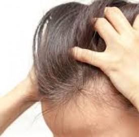 خارش سر و علت های بروز این عارضه پوستی ؟