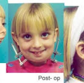 ناهنجاری فکی کودکان و اهمیت درمان این نوع عارضه
