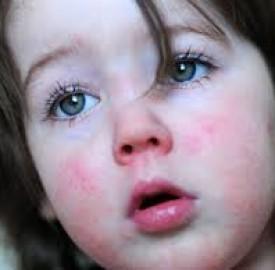 مخملک و پیشگیری از این عارضه در کودکان