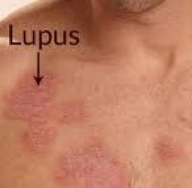 لوپوس و اطلاعاتی مهم درخصوص این بیماری !