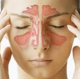 عفونت سینوسی و درمان های خانگی این عارضه !