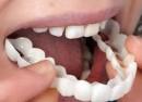 اسنپ آن اسمایل راه حلی سریع برای زیبایی دندان !