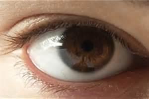استفاده غیراصولی از لنز طبی عامل اصلی تخلیه قرنیه