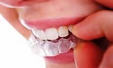 دندان قروچه واکنشی بر هیجانات درونی