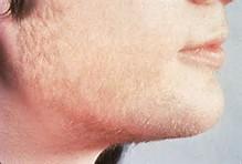 ریش هایی که با رسیدن بلوغ به رشد کامل نمی رسند
