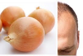 پیاز و تأثیر آن برای داشتن موهایی پرپشت و ضخیم