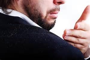 درمان قطعی و دائمی شوره سر یک کذب دوست داشتنی