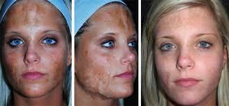 سوختگی های لیزری چرا و چگونه بر سطح پوست ایجاد می شوند
