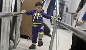 آیا کودکان با معلولیت جسمی نیازمند مراکز آموزشی مجزا هستند ؟