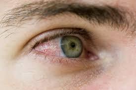 مبارزه با قرمزی چشم با روش های ساده و البته طبیعی