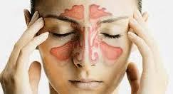 سینوزیت از علایم این بیماری تا روش های درمانی متعدد آن