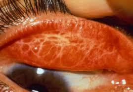 علایم بیماری تراخم چیست و چگونه ایجاد می گردد ؟