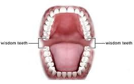دانستنی هایی درخصوص دندان عقل و چگونگی مراقبت از آن