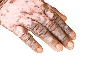 بیماری پیسی و دلایل ابتلا به این بیماری پوستی