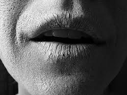 علل بروز خشکی دهان چیست و روشهای درمانی آن کدامند ؟