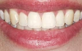 لکه های دندانی و روش هایی برای از بین بردن آنها ؟