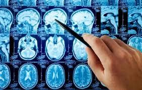 علامت های مهم تومور مغزی را بخوبی بشناسید !