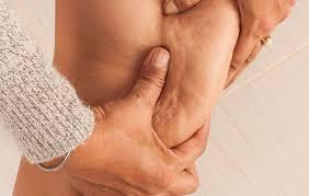 سلفینا روشی مؤثر و کارآمد برای درمان سلولیت ؟