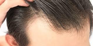 آندروژنیک و اطلاعاتی درباره این نوع از ریزش مو ؟