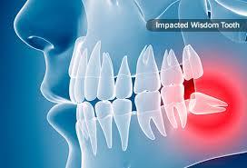 دندان عقل و نکاتی درباره جراحی این دندان ؟