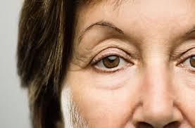 افتادگی پوست و ترفندهایی برای مقابله با این مشکل