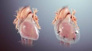 پریکاردیال افیوژن و نحوه درمان این نوع عارضه قلبی ؟