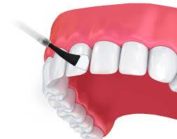 فلوراید تراپی چه نقشی در محافظت از دندان دارد ؟