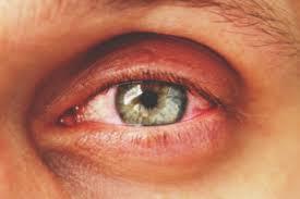 تبخال چشمی را به همراه علل آن بررسی کنیم
